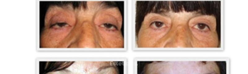 Corrección de ptosis palpebral