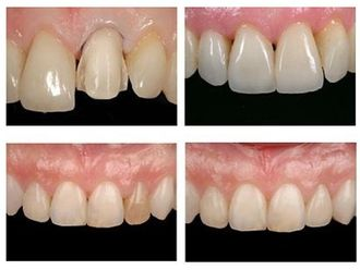Blanqueamiento dental-334434