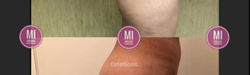 Aumento glúteos con grasa y prótesis