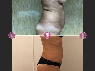 Abdominoplastía - 633921