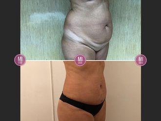 Abdominoplastía - 633923