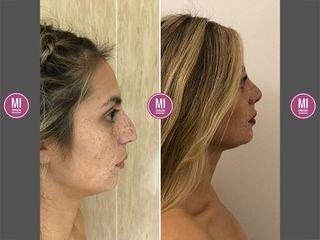 Rinoplastia 1 mes