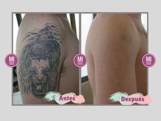 Borrar tatuajes-640187