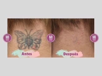 Borrar tatuajes-640188