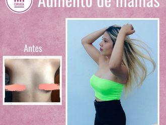 Aumento mamas - 790959