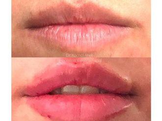 Rellenos faciales - 628294