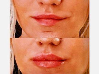 Rellenos faciales - 628298