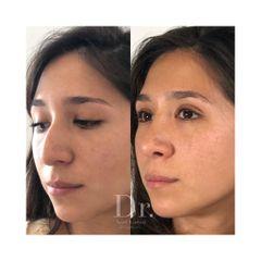 Postoperatorio Rinoplastia Antes y Después