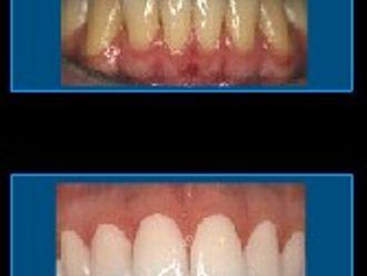 Blanqueamiento dental-283745