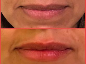 Rellenos faciales - 636526
