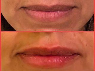 Embellecimiento labial