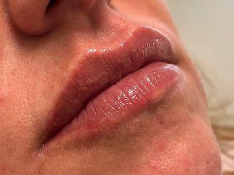 Rellenos faciales-636527