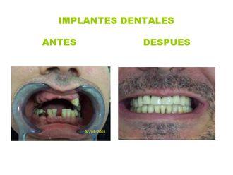 Implantes dentales - 361934