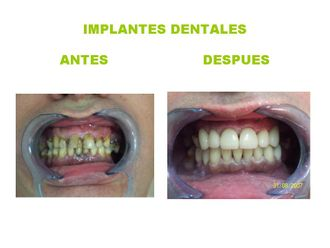 Implantes dentales - 361935