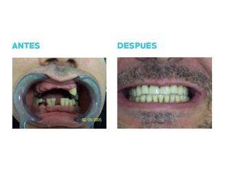 Implantes dentales-696015