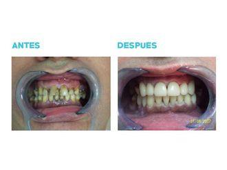 Implantes dentales-696017