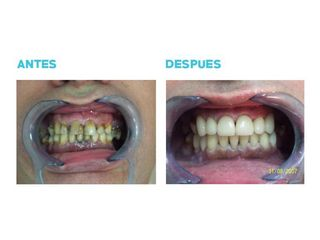 Implantes dentales - Dr. Andrés Etbul