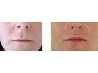 Aumento de labios - Dr. Andrés Etbul
