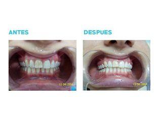Blanqueamiento dental - Dr. Andrés Etbul