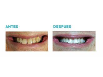 Blanqueamiento dental-696028
