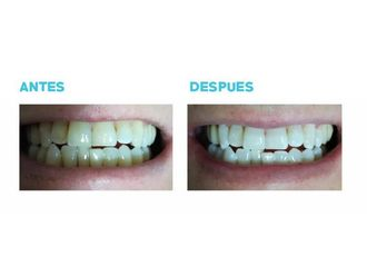 Blanqueamiento dental-696031