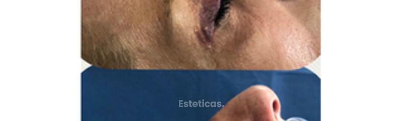 rinoplastia dr