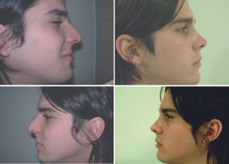 Pablo rinoplastia