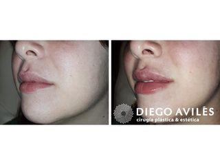 Rellenos de Labios - Dr. Diego Avilés