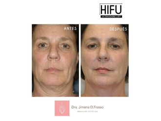Rejuvenecimiento facial - 632508