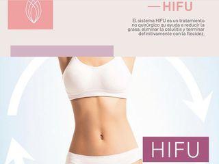 Hifu corporal