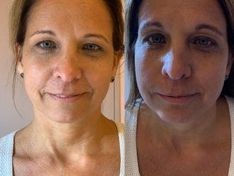 Rejuvenecimiento facial-646597