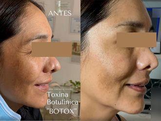 Botox-737613