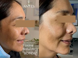 Botox - Dra. Jimena D. Frasso