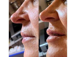 Relleno de labios - Dra. Jimena D. Frasso