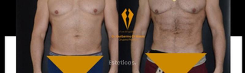 Lipoescultura VASER con marcación de abdominales.