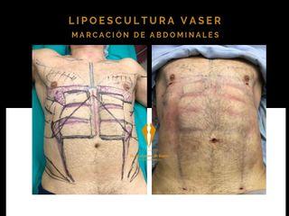 Lipoescultura corporal con VASER en hombres