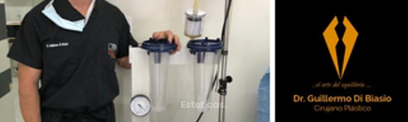 Tecnología VASER para lipoescultura.