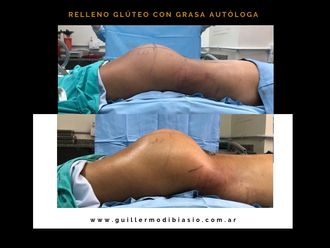 Aumento glúteos-633636
