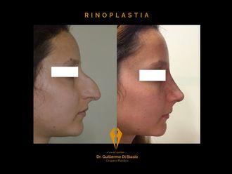 Rinoplastia - 634575
