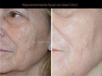 Rejuvenecimiento facial-638562