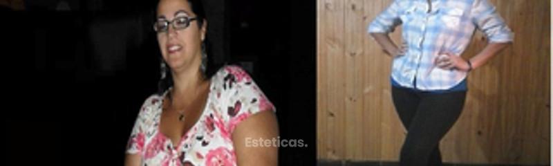 Cirbba-Cirugía Bariátrica y Post-Bariátrica de Buenos Aires
