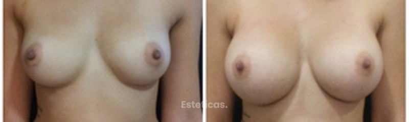 Mamoplastia Aumento