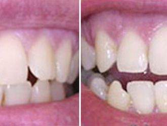 Blanqueamiento dental-267731