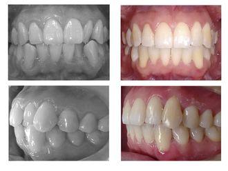 Ortodoncia-623671