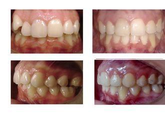 Ortodoncia-624570