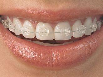 Ortodoncia-627112