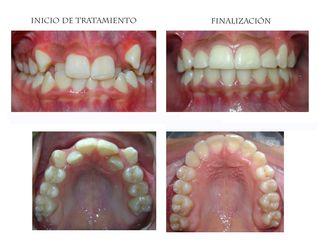 Ortodoncia-637414