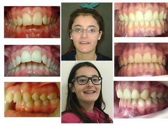 Ortodoncia-642742