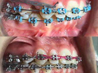 Implantes dentales-646715