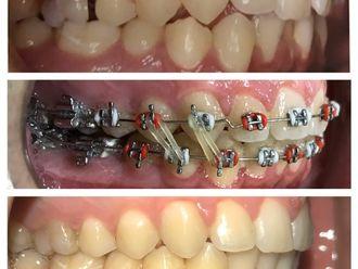 Ortodoncia-648432